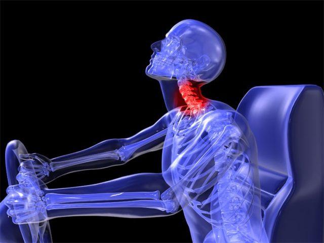 レントゲンでは、何ともないがむち打ちの症状がある場合は、どうしたらいいのか 佐久市整骨院