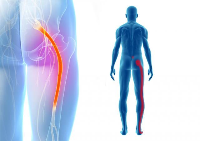 坐骨神経痛、慢性腰痛はリハビリでの改善はできる?佐久市の整骨院、整体院