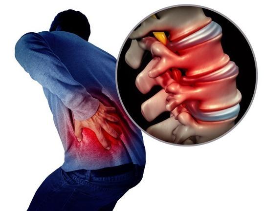らいおんハート整骨院佐久 椎間板ヘルニアの原因とデイスクワークの関係は?根本的な原因と治療法は? 佐久市の整骨院、整体院