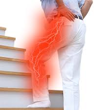 腰の痛みと足のしびれの関係は?坐骨神経痛みの根本的な原因とは?